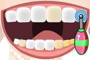 Diş Temizleme Resmi Resim